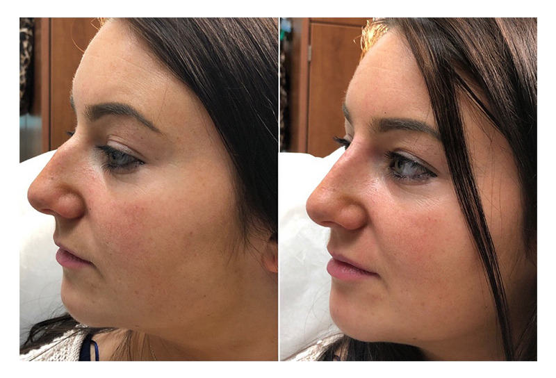 Dermal Knowledge | Non-surgical Rhinoplasty